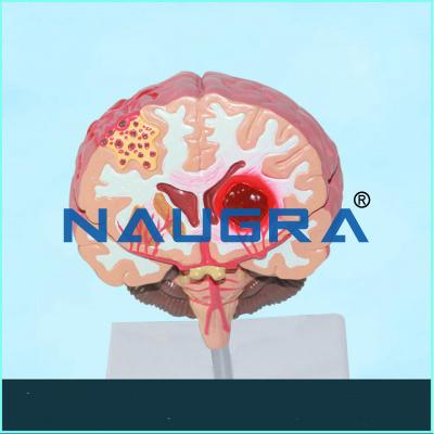Brain Stroke Model